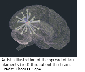Illustration showing the spread of Tau filaments throughout the brain